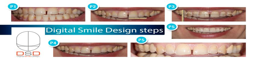 Digital Smile Design (Esthetic dentistry, Digital Smile Design)